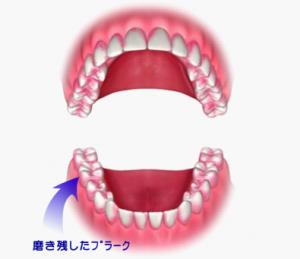 口の中の磨き残したプラーク