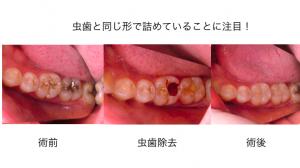 コンポジットレジンによる虫歯治療