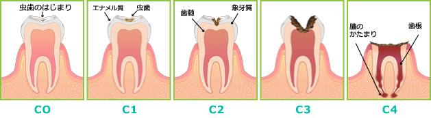 虫歯の進み方のイラスト