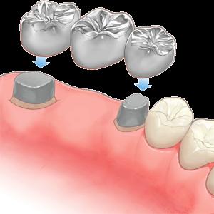 歯科ブリッジの構造