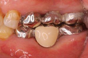 歯科ブリッジ下のプラーク