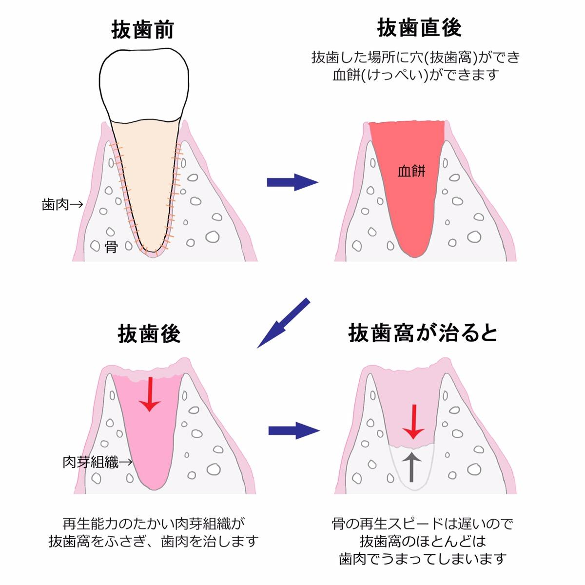 抜歯窩治癒