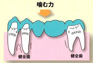 噛んだ時の歯にかかる力
