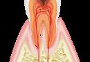 歯の神経のイラスト