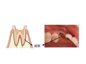 歯の根の図と写真