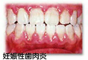 妊娠性歯肉炎の口腔内写真