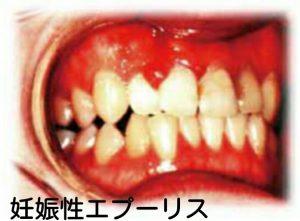 妊娠性エプーリスの口腔内写真