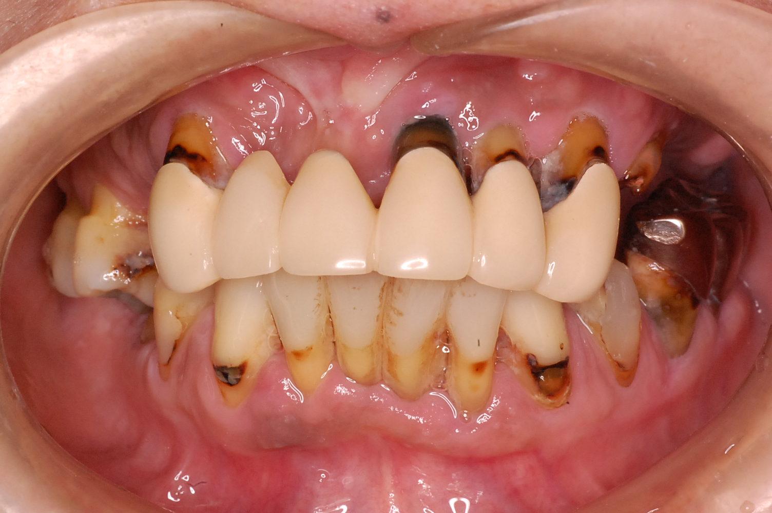 歯周病写真