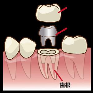 差し歯の構造 大臼歯