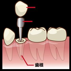 差し歯の構造 小臼歯