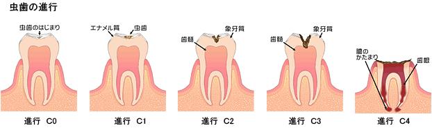 虫歯 進行