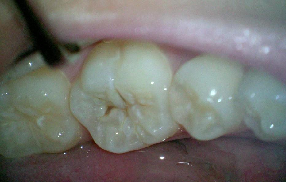 虫歯拡大画像