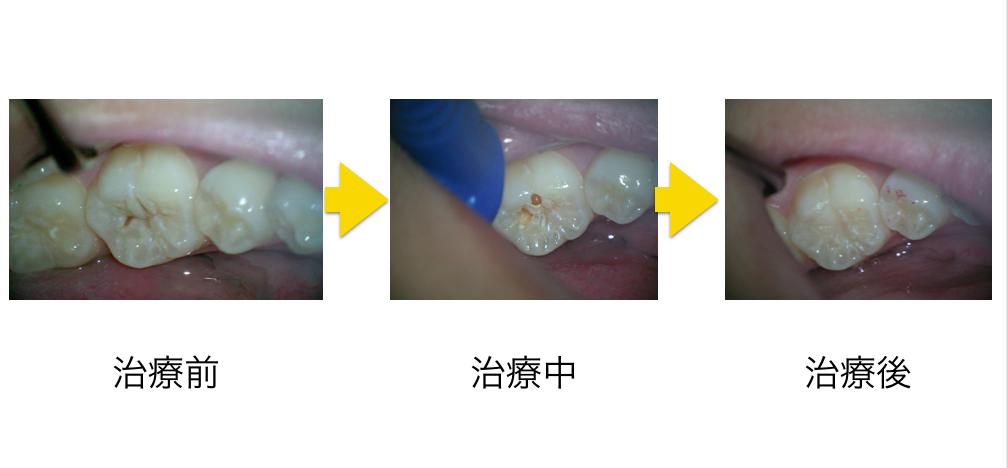 小児むし歯治療コンポジットレジン