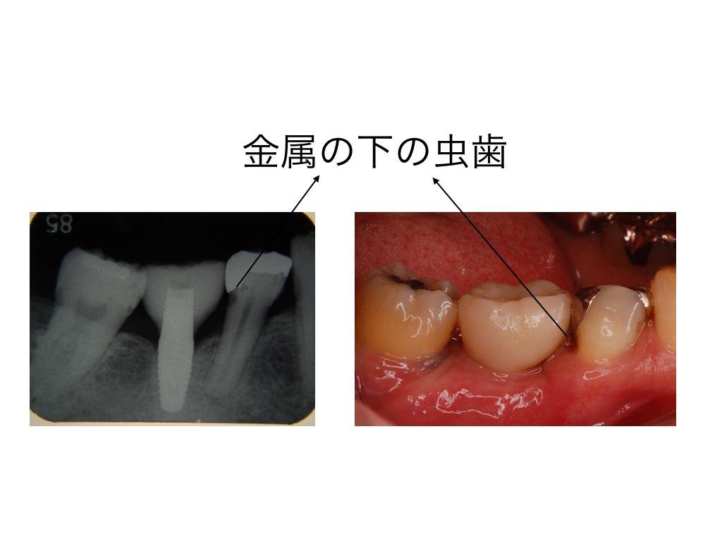 虫歯の見方