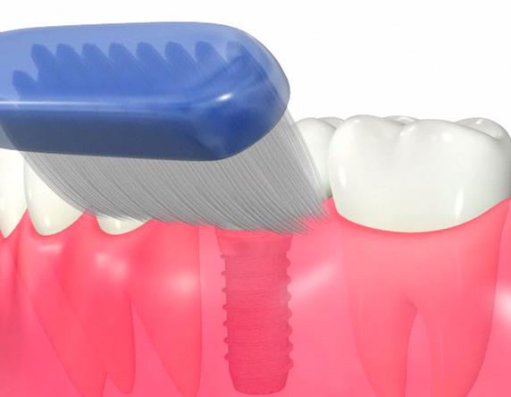 インプラント歯ブラシ