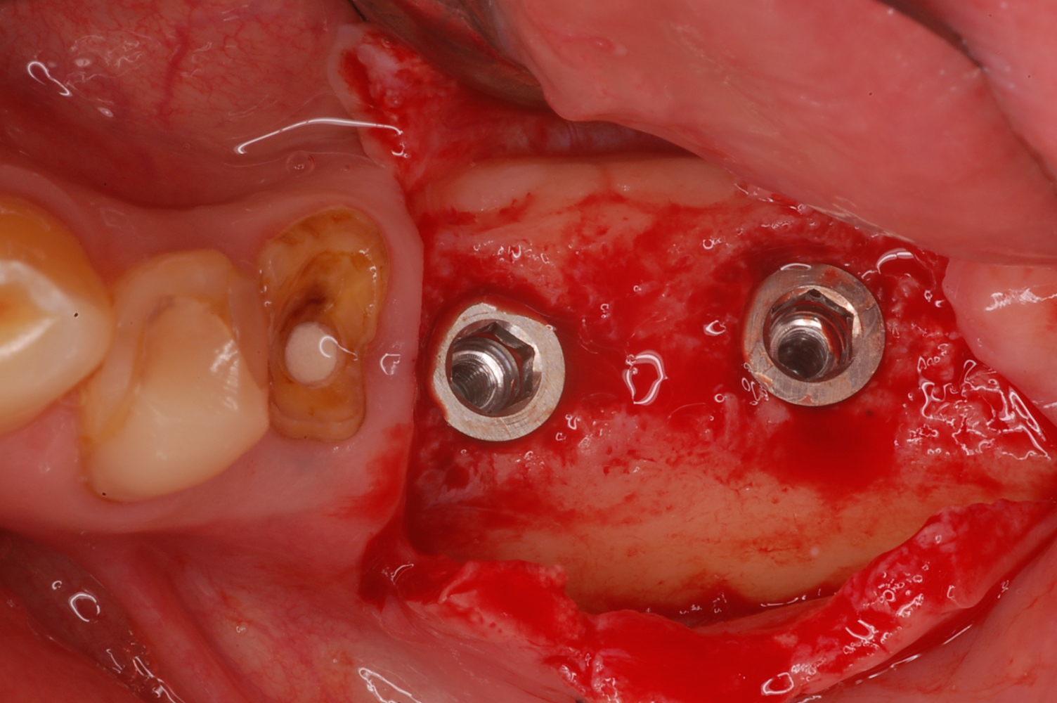 インプラント手術中