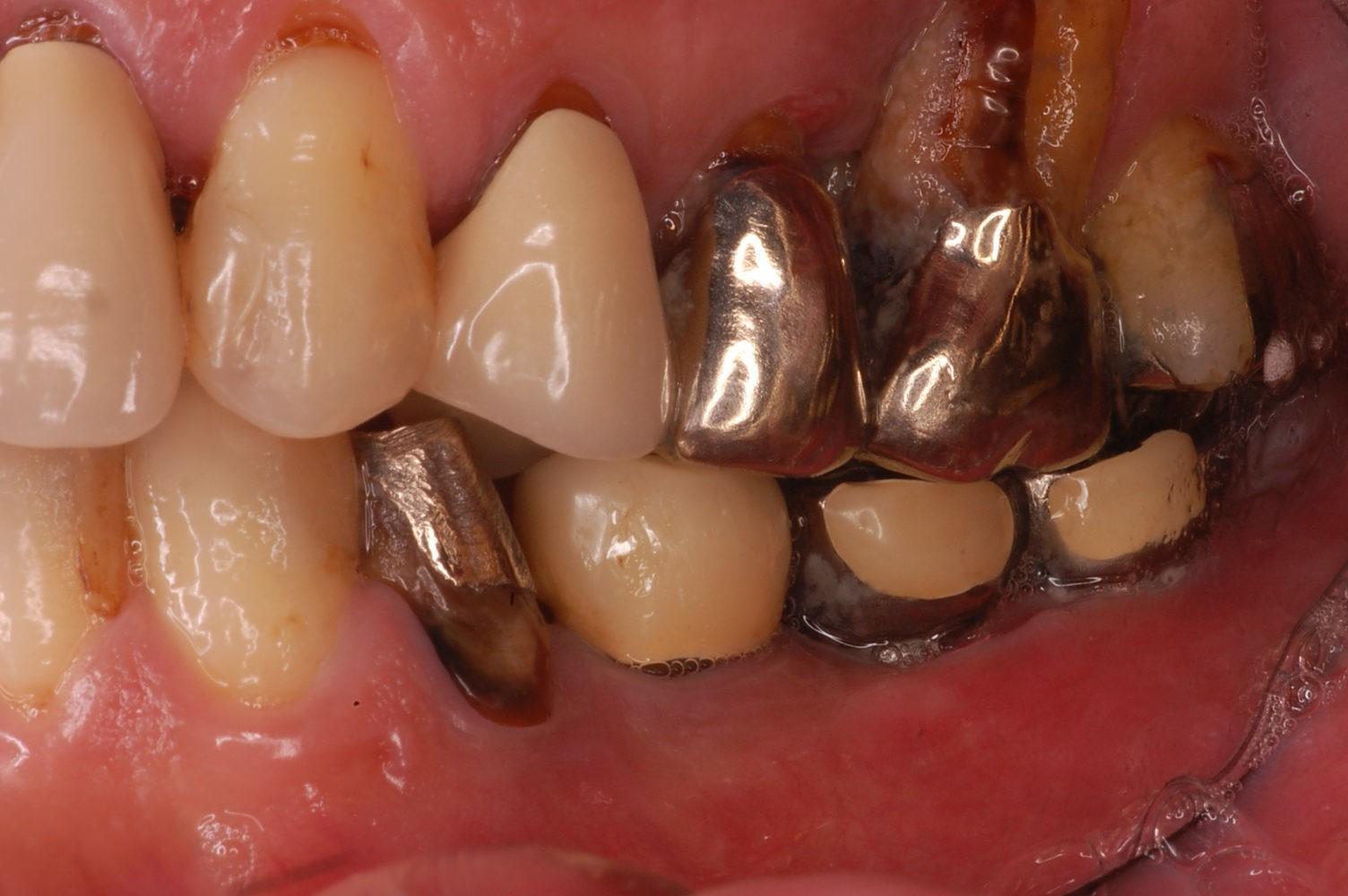 歯周病進行