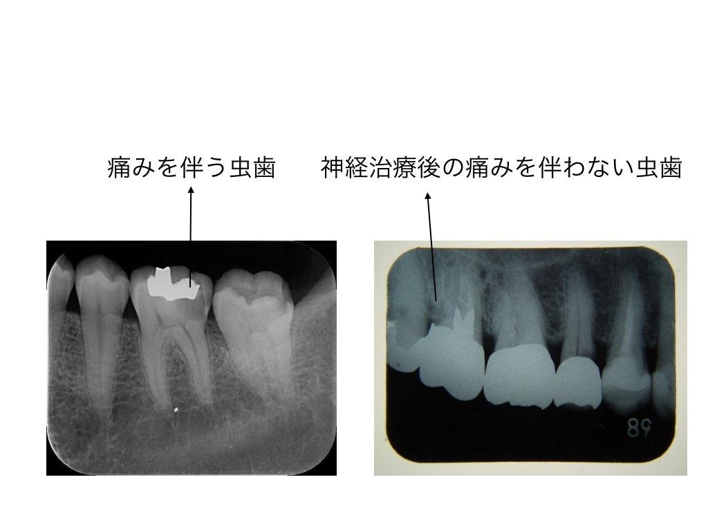 虫歯の大きさの確認