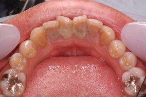 歯石 写真