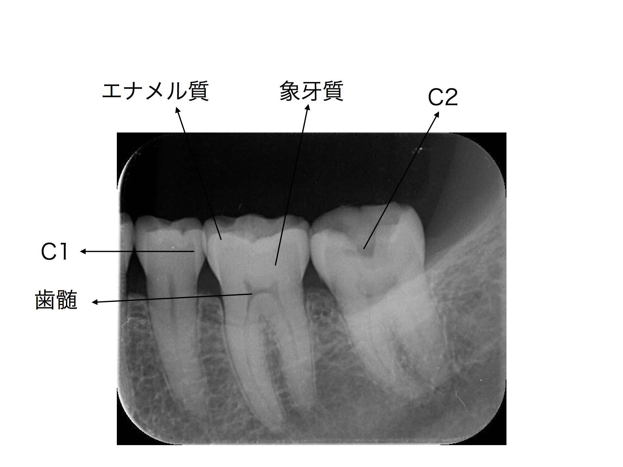健康な歯の見方