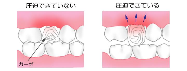 抜歯後の圧迫止血