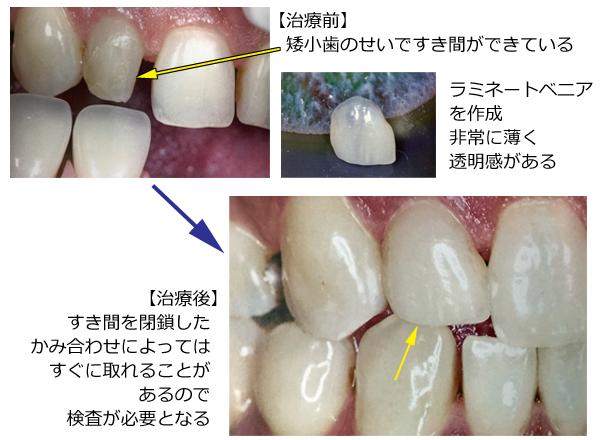 矮小歯をラミネートベニアで治療