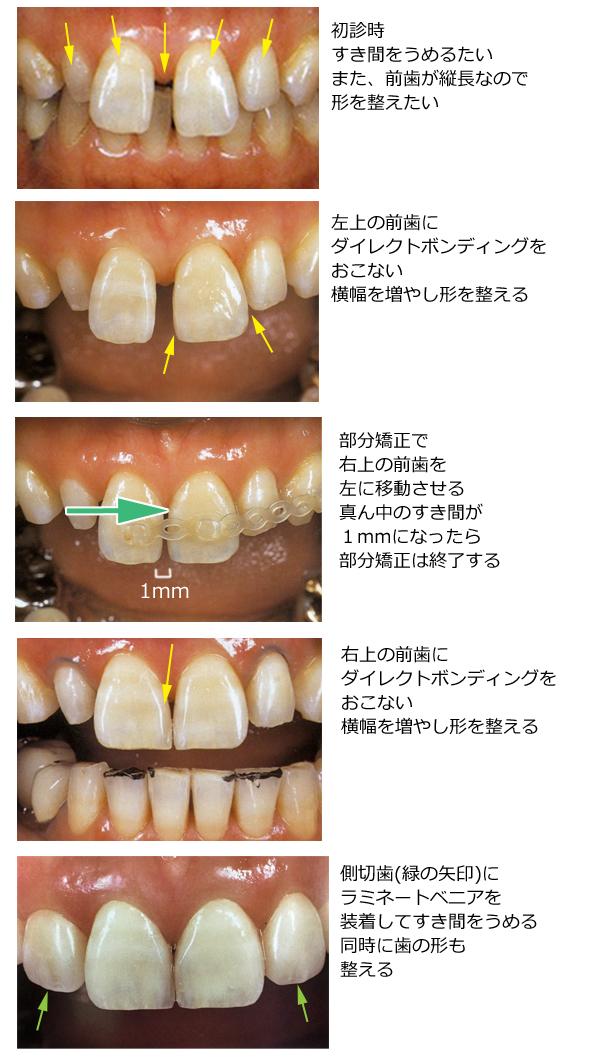 審美歯科治療の流れ