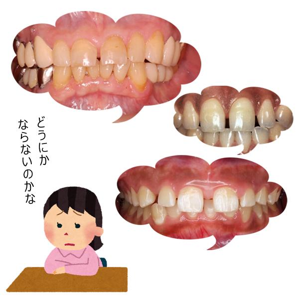 すきっ歯で悩んでいる人の画像