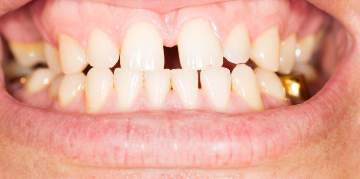 すきっ歯、正中離開、空隙歯列の画像