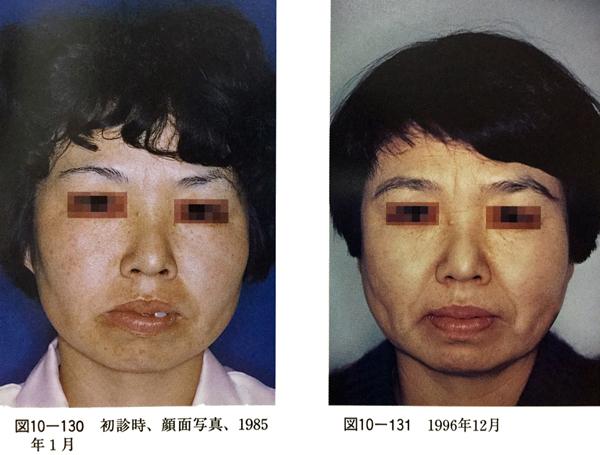 顎偏位の治療経過