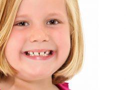 すきっ歯の女の子