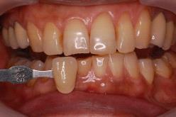ホワイトニング前の口腔内写真