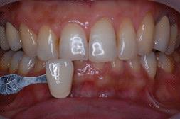 ホワイトニング後の口腔内写真