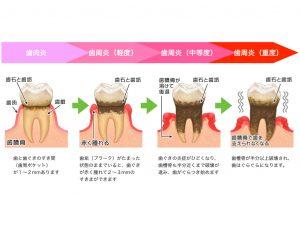 歯周病 進行