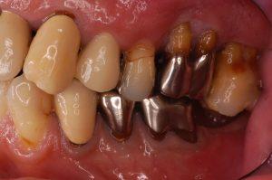 歯周病 抜歯