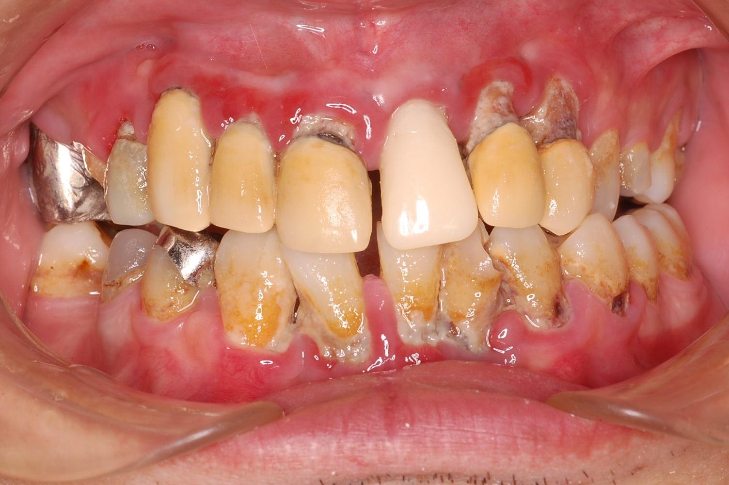 歯周病 写真