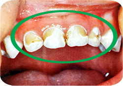 環状虫歯 子供