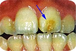 Turner歯