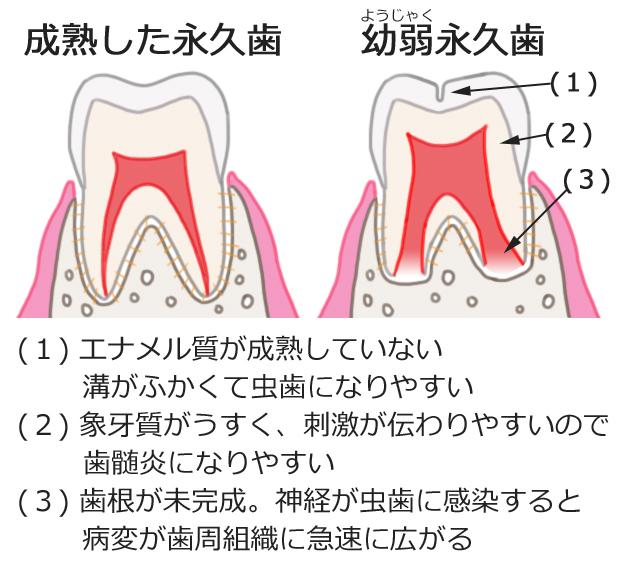 幼弱永久歯の特徴