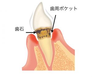 歯石と歯周ポケット