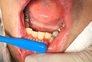 歯みがき時の出血
