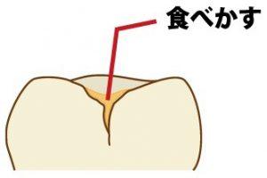 小窩裂溝に汚れ