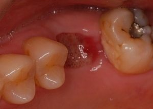 抜歯3日後の傷口