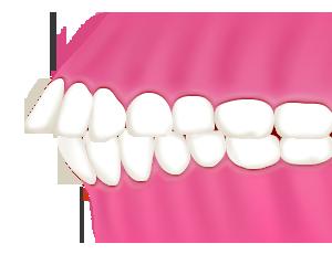 上顎前突/出っ歯