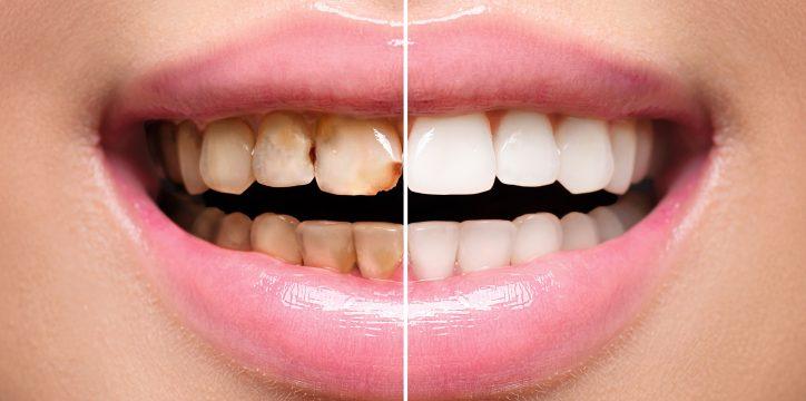 前歯 差し歯 できない 土台がほとんどない歯に差し歯をする場合はどうなるのでしょうか?