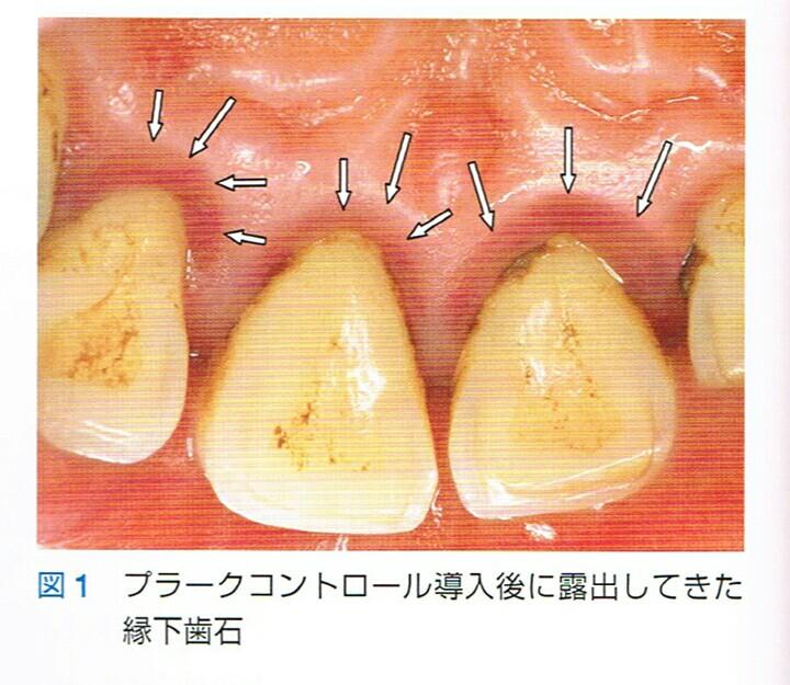 縁下歯石の画像