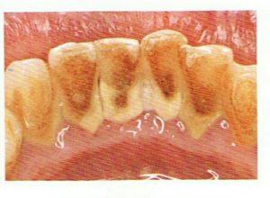 縁上歯石の画像