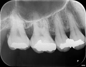 中程度歯周炎 デンタル