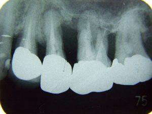 重度歯周炎デンタル