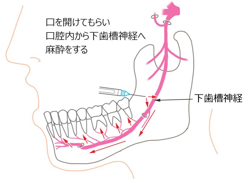 下顎孔伝達麻酔